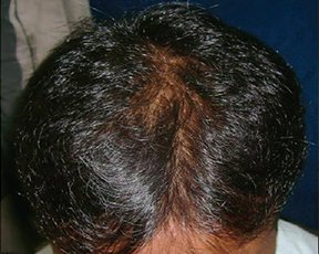 "Natural ""Hair Regrowth Solution"" Shocks Indian Doctors"